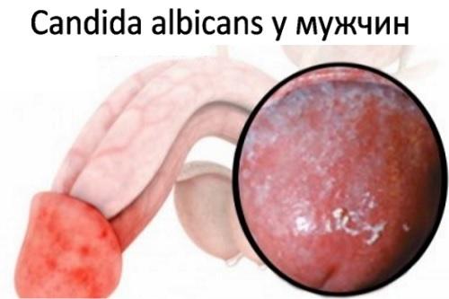 candida albicans - что это такое у женщин и мужчин, заболевания