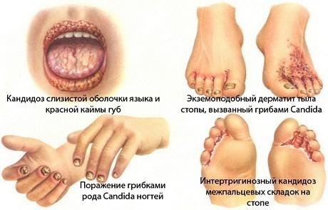 Кандидоз - что это, причины, симптомы, диагностика, лечение
