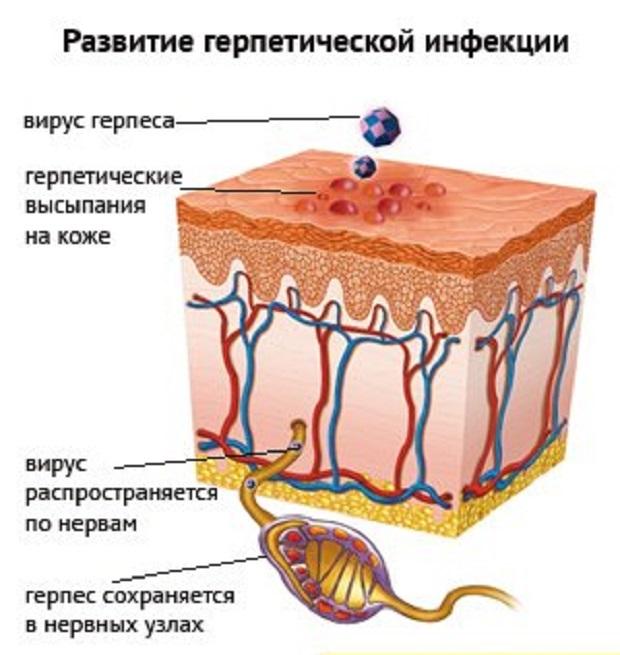 Рецидив генитального герпеса - как вылечить повторное возникновение инфекции?