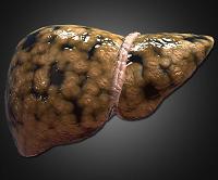 Фиброз 1, 2, 3 и 4 степени при гепатите С: симптомы и лечение