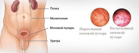 Кандидозы у мужчин - симптомы, лечение и профилактика