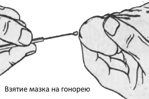 Мазок на гонорею: подготовка, расшифровка