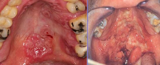 Сифилитическая ангина (сифилис горла) - симптомы, лечение