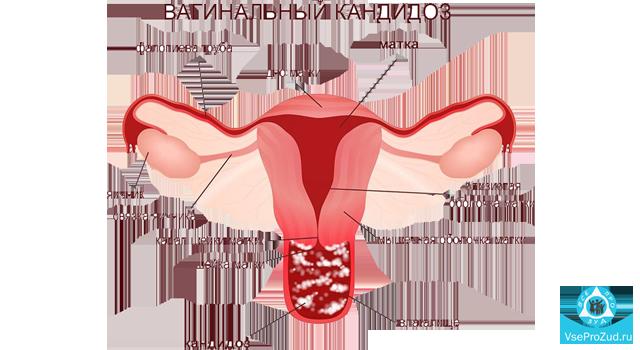 Белые выделения и зуд у женщин: причины и лечение их появлений из влагалища