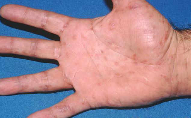 Кожные проявления сифилиса: высыпания пятен, папулы, уплотнения
