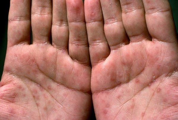 Сифилитическая розеола (пятнистый сифилид) - признаки и лечение