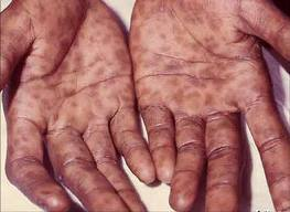 Как проявляется сифилис, когда возникают первые признаки заболевания?