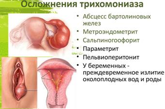 Трихомониаз: симптомы, первые признаки заболевания