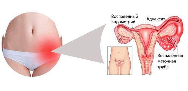 Атрофический вагинит, постменопаузный, симптомы и лечение