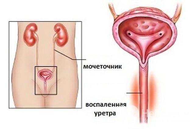 Уретрит у женщин - что это, симптомы, диагностика, лечение