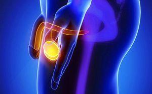 Водянка яичка у мужчин: причины, способы лечения