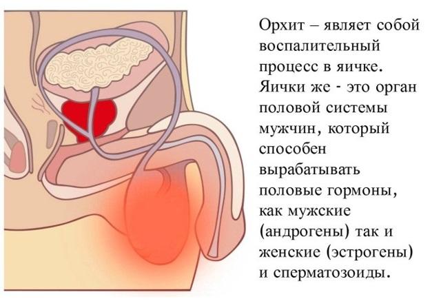 Хламидийный уретрит: лечение и симптомы, у мужчин и женщин