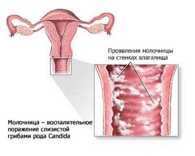 Марганцовка при молочнице - что дает, как применять для лечения