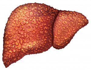 Цирроз печени и гепатит С, как лечится заболевание