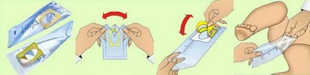 Как мочу собрать у грудничка мочу: выбор тары и порядок действий