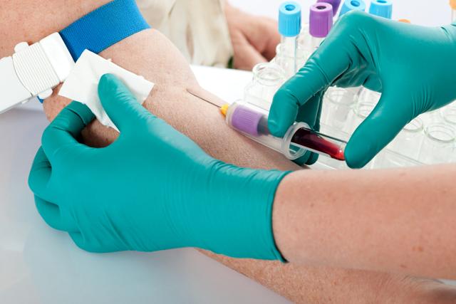 Анализ на уреаплазму у женщин, мужчин, как сдавать кровь на ПЦР и мазок на посев