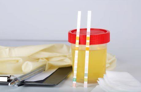 Эритроциты в моче - что это значит, причины повышения и методы лечения