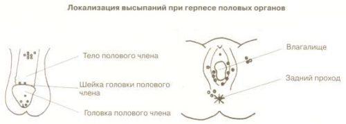 Профилактика герпеса - меры для предотвращения заболевания