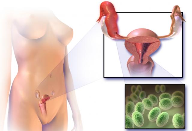 Хронический хламидиоз: симптомы, лечение, запущенная форма