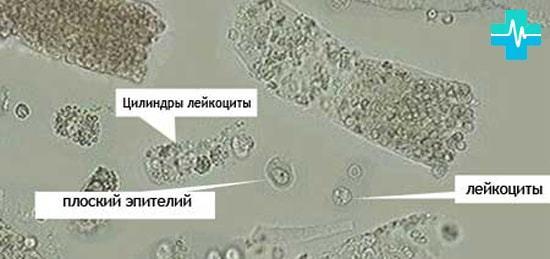 Эпителий плоский в моче - какая норма, почему повышается, опасно ли это?