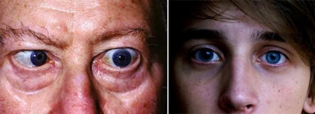 Сифилис глаз — причины, лечение, осложнения и последствия?