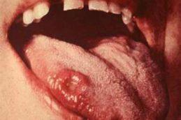 Шанкр — что это такое, внешний вид, атипичные формы, лечение и осложнения