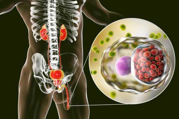 Воспаление яичка у мужчин: причины, симптомы, как лечить