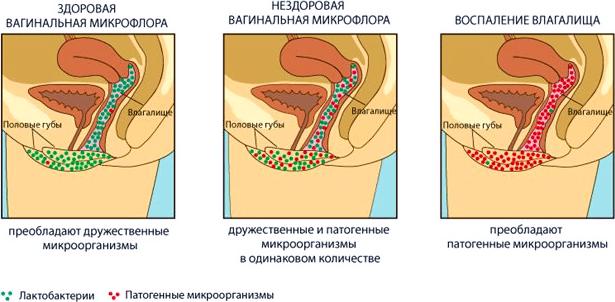 Кандидозный вагинит - симптомы, лечение и профилактика