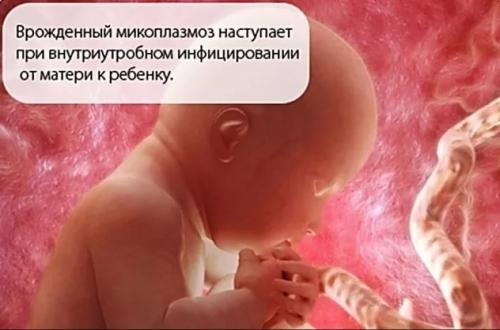 Микоплазма гениталиум (mycoplasma genitalium) - симптомы у женщин