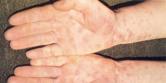 Сифилис носа - как выглядит, причины и лечение