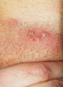 Герпес в интимной зоне: симптомы и эффективное лечение у женщин и мужчин
