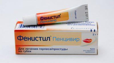 Герпес - лечение у взрослых современными препаратами