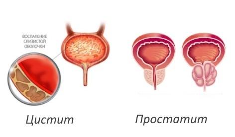 Острый уретрит у мужчин: причины, симптомы, лечение