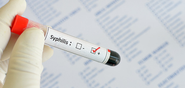 Сифилис при беременности - проявления, анализы для выявления, эффективное лечение