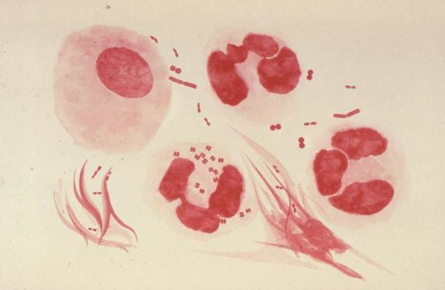 Нейссерия гонорея - характеристика бактерии и заболевания, которое она вызывает