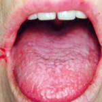 Орофарингеальный кандидоз: причины, признаки и лечение