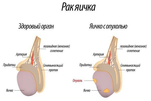 Рак яичка — симптомы у мужчин, первые признаки, последствия и прогноз