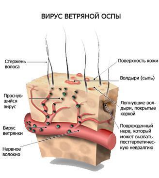 Герпес на шее: причины, лечение, последствия у взрослых и детей