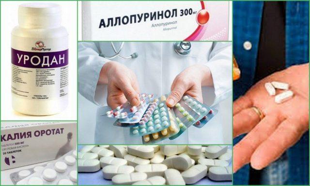 Как вывести мочевую кислоту из организма, какими лекарствами и средствами?