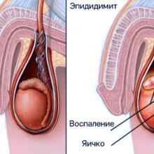 Гонококковая инфекция, проявления, лечение, прогноз