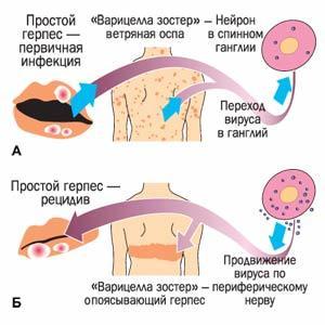 Герпес на щеке, лбу, подбородке у ребенка, лечение высыпаний на лице
