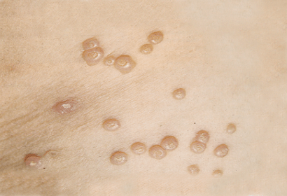 Контагиозный моллюск у детей - причины, лечение и профилактика