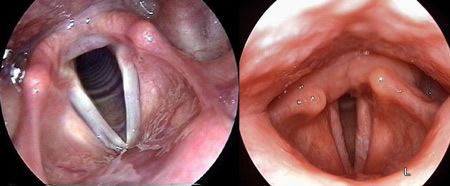 Кандидоз горла и гортани - причины, симптомы и лечение