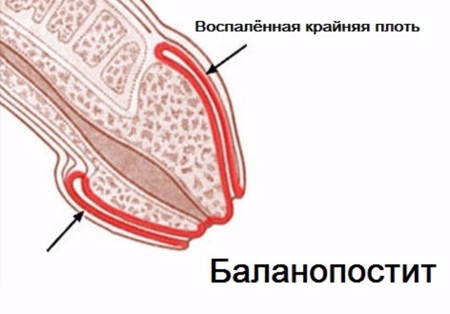 Неприятный запах рыбы от мужских гениталий