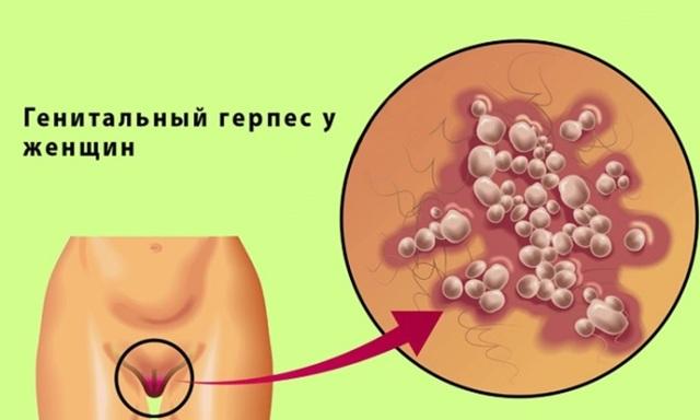 Генитальный герпес - что это за заболевание?