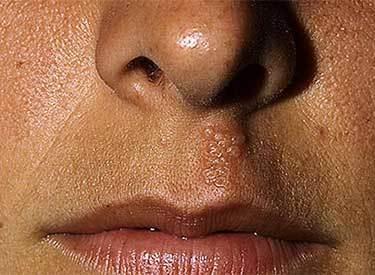 Герпес на губах: первые признаки, как распознать симптомы
