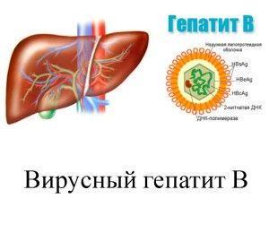 Гепатит В (Б) - что это за заболевание
