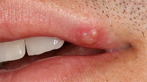 Стадии развития герпеса на губах по дням