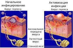 Мазь от генитального герпеса - лечение мазями, какую выбрать, ТОП