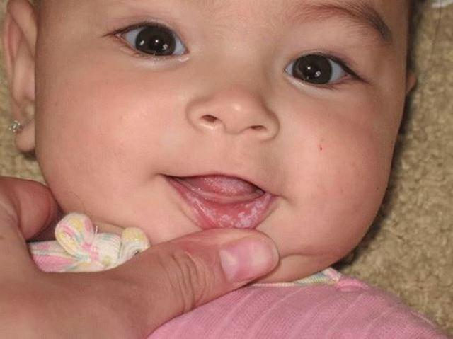 Молочница во рту у грудничка - признаки и лечение